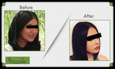 BEFORE-AFTER,RINOPLASY,جراحی زیبایی بینی
